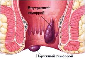 operaciya-po-udaleniyu-gemorroya.png