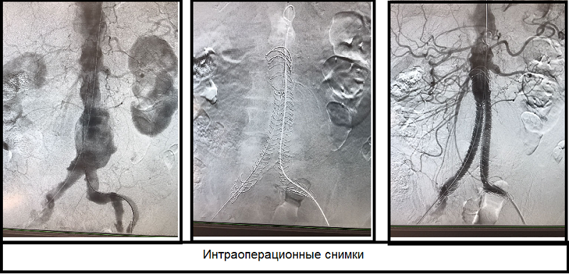 Серия фотографий до и после операции