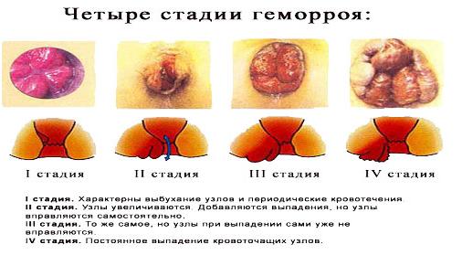 operaciya-po-udaleniyu-gemorroya_1.png